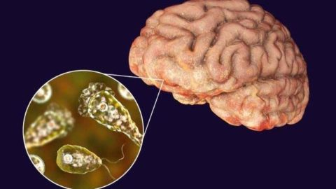 Brain-eating amoebae halted by silver nanoparticles