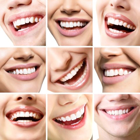 Is your smile male or female?