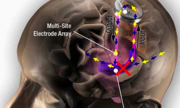 DARPA-funded prosthetic memory system successful in humans, study finds