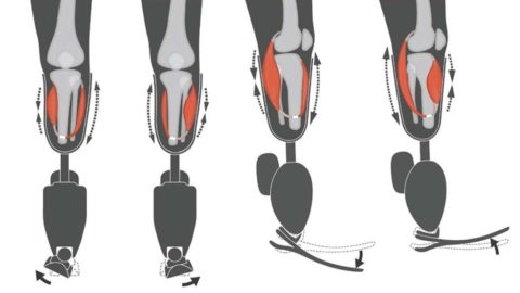 Surgical technique improves sensation, control of prosthetic limb