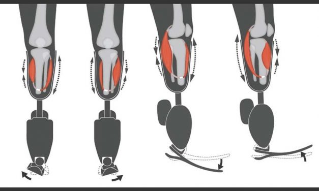 Surgical technique improves sensation, control of prosthetic limb