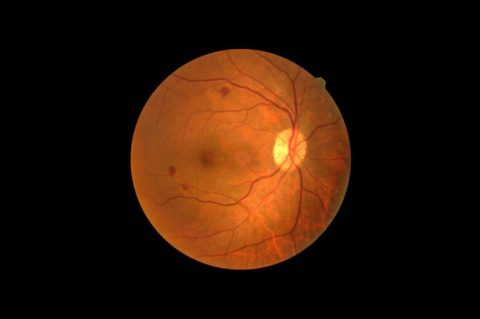A new generation of artificial retinas based on 2D materials